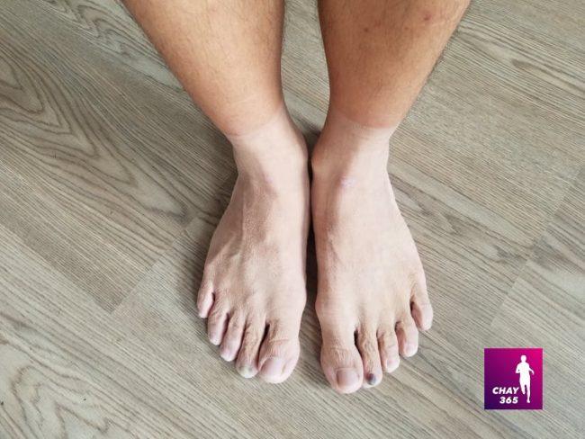 Móng chân đen khi chạy bộ