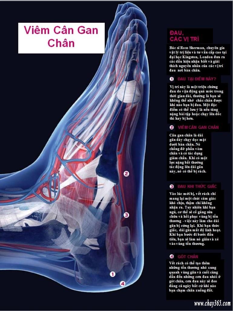 Chấn thương chạy bộ: Viêm cân gan chân , nhận biết ban đầu