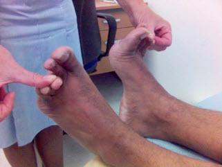Nghiệm pháp kéo dãn thần kinh ngón chân